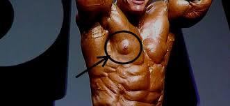Gynécomastie sur un Bodybuilder